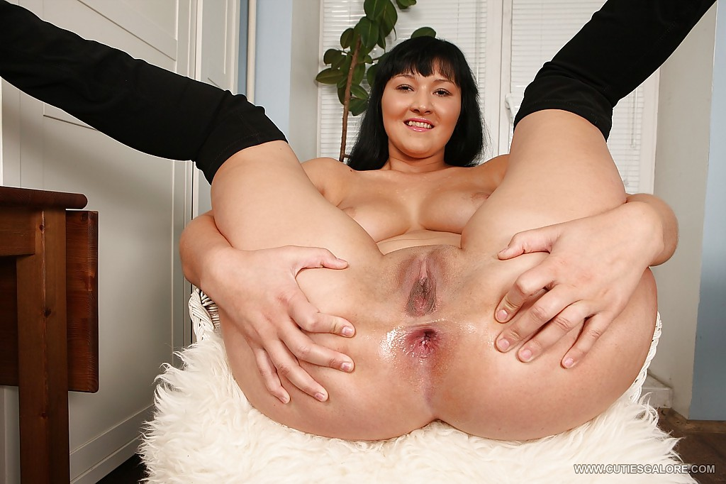 Sex huge anal prolapse